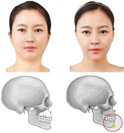 chin reduction- gallery-02