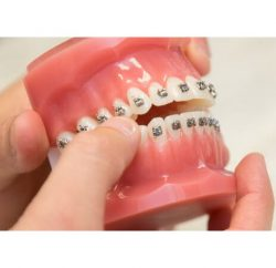 orthodontics-gallery-03