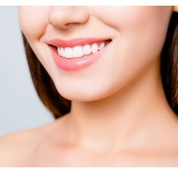 tooth whitening-gallery-05