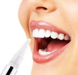 tooth whitening-gallery-10