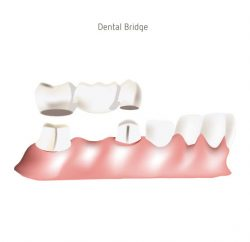 dental-bridge-gallery-03