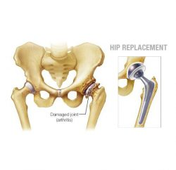 hip-replacement-gallery-01