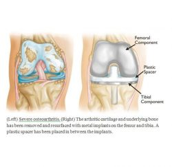 knee-replacement-gallery-01