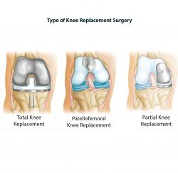 knee-replacement-gallery-04