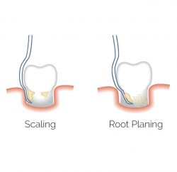 scaling-and-root-planing-gallery-04