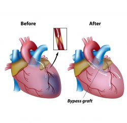 Heart-Bypass-Surgery-gallery-02