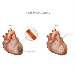 Heart-Bypass-Surgery-gallery-04
