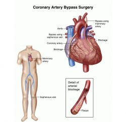 Heart-Bypass-Surgery-gallery-05