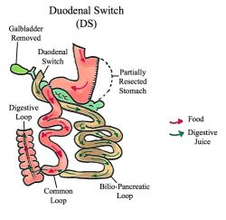 duodenal-switch-gallery-03