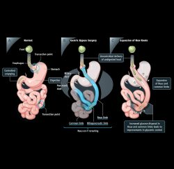 gastric-bypass-gallery-06