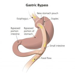 gastric-bypass-gallery-08