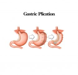 gastric-plication-gallery-04