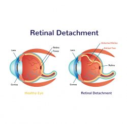 retinal-detachment -gallery-03