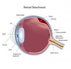 retinal-detachment -gallery-04