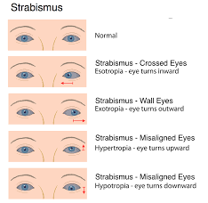 strabismus-gallery-01
