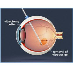 vitrectomy-gallery-02