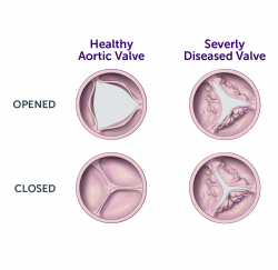 Aortic-Valve-Surgery-gallery-04