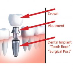 dental-implant-gallery-01