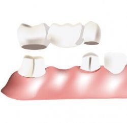 dental-implant-gallery-04