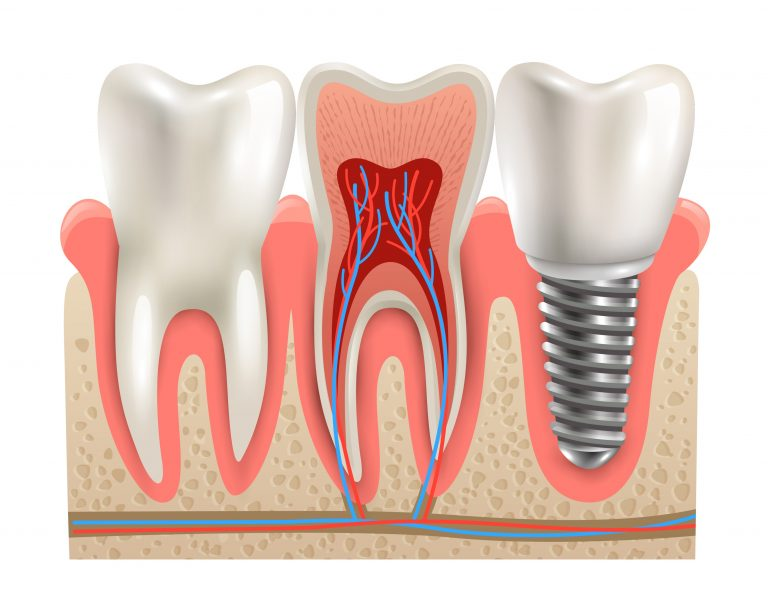 7 proven benefits of having a dental implant