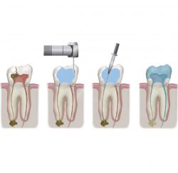 root-canal-treatment-gallery-01