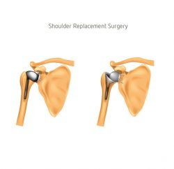shoulder-replacement-gallery-02