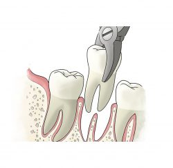 tooth-extraction-gallery-02