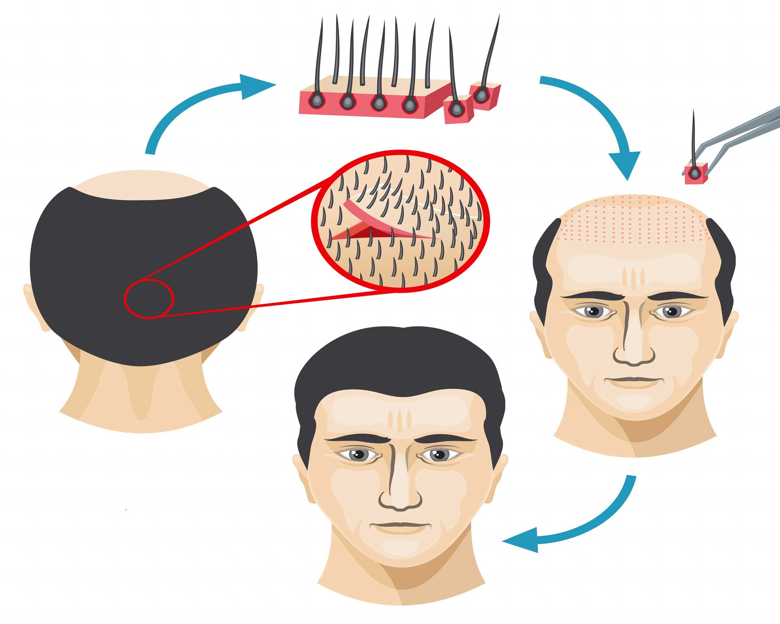 A complete guide to a hair transplant recovery