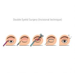 blepharoplasty-gallery-02