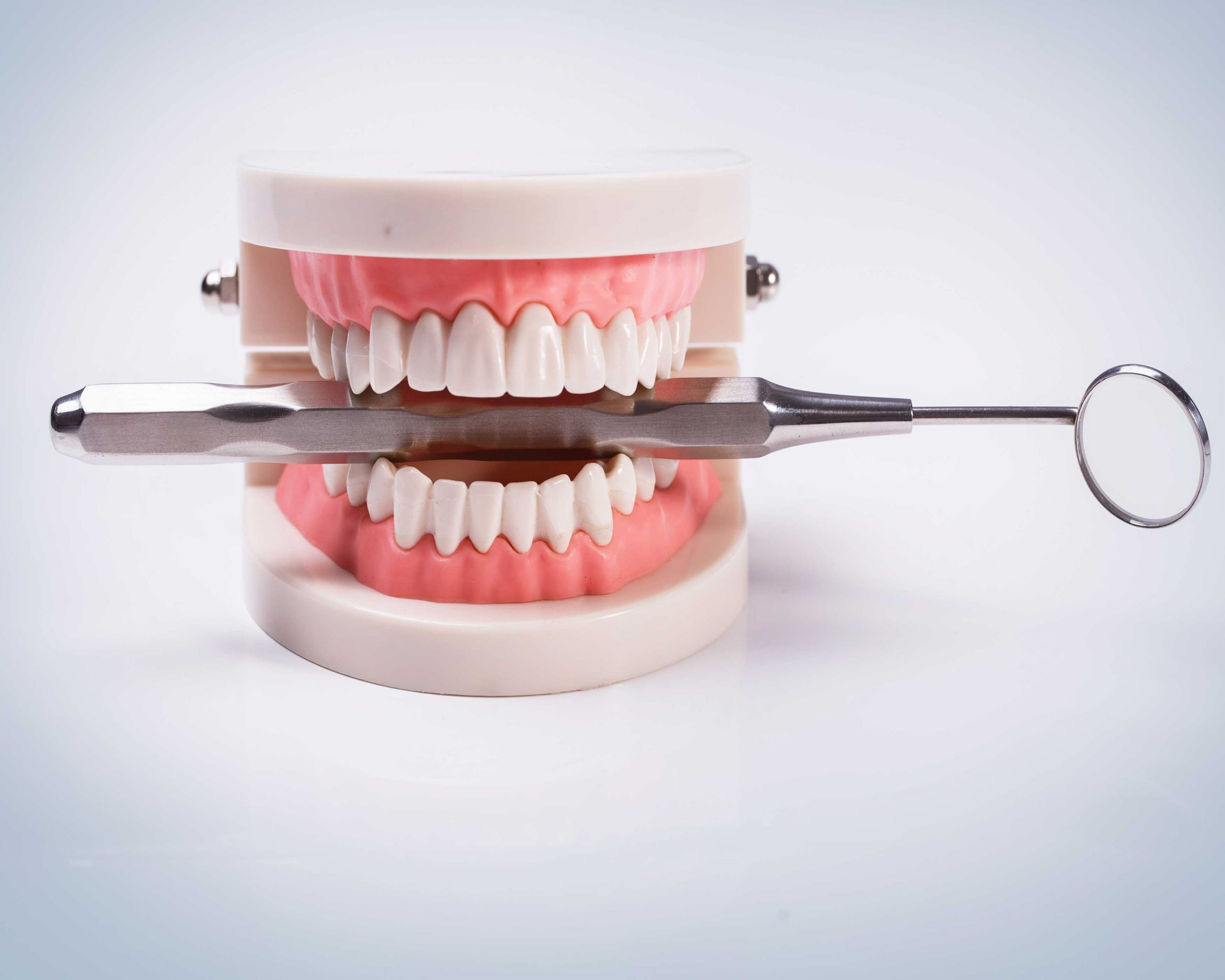 Top 5 questions patients ask about denture