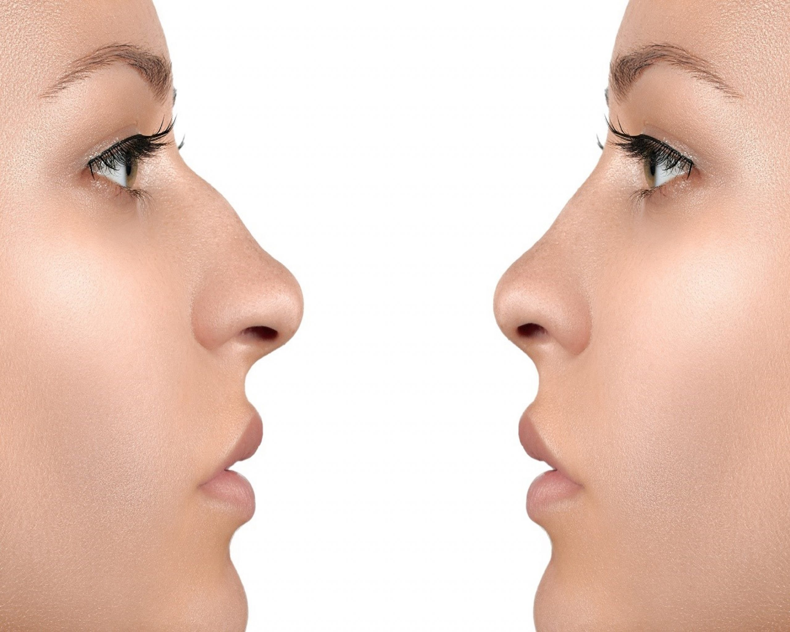 Is Rhinoplasty Right For You? What You Need To Know